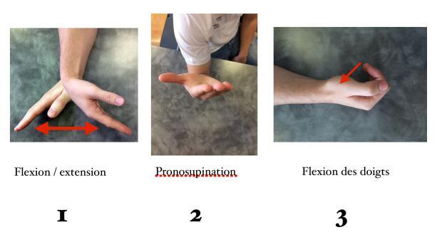 Conseils aux patients après fractures du poignet